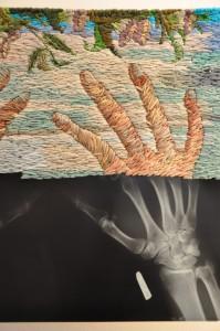 borduurwerk van Matthew Cox op röntgenfoto's